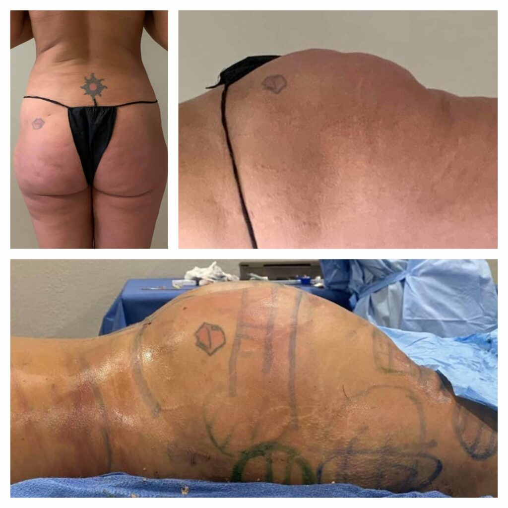 Surgery Procedures - Buttock Re-shape and Lift