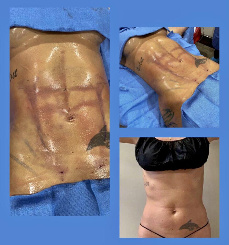 Surgical Procedure - Abdominoplasty