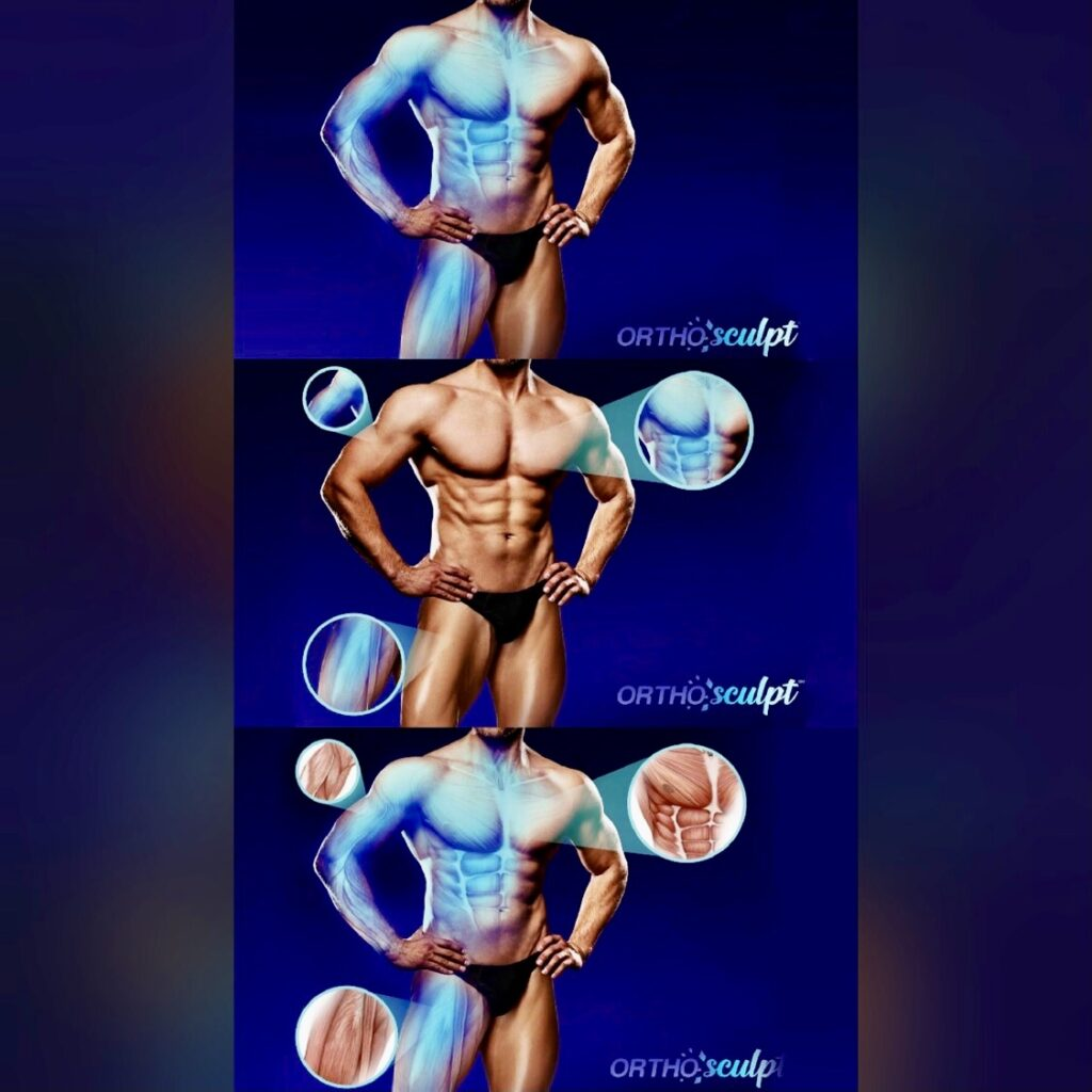 OrthoSculpt 3D Body Model - Dr Cyr