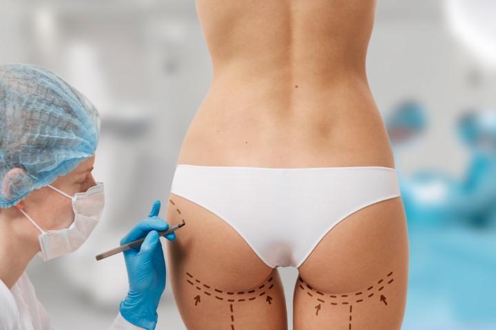 How much Does BBL (Brazilian butt-lift) surgery cost?