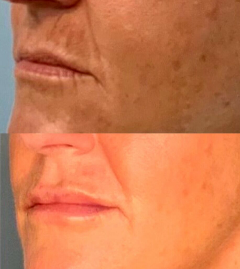 fat transfer to the lips