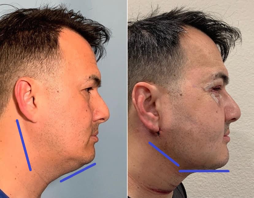 Lower Face and Neck Liposculpture